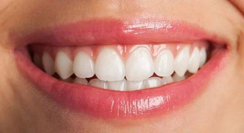 Consejos durante el uso de Ortodoncia